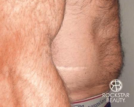 SmartLipo®: Patient 2 - Before and After Image 3