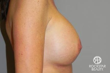 Breast Augmentation: Patient 5 - After 3