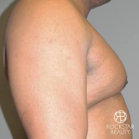 Gynecomastia: Patient 1 - Before and After Image 3