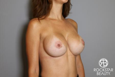 Breast Implant Exchange: Patient 7 - After Image 2