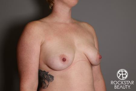 Breast Augmentation: Patient 11 - Before Image 2