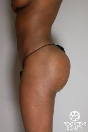 Butt Augmentation: Patient 2 - After Image 4