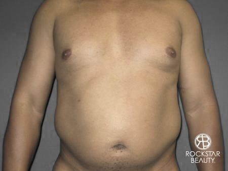 Liposuction: Patient 10 - Before Image 1