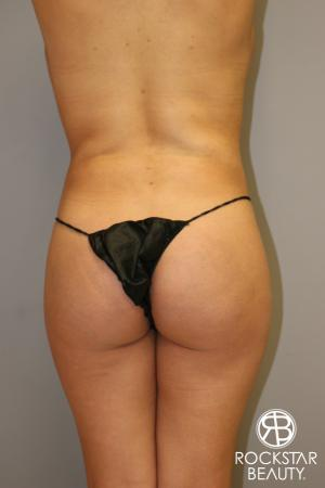 Liposuction: Patient 14 - Before Image 2