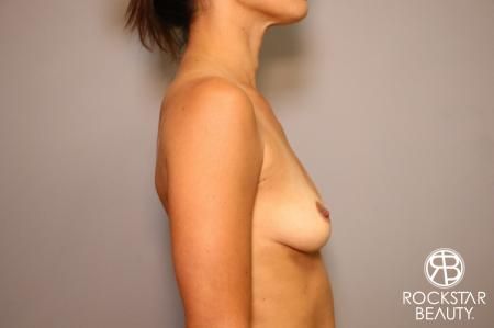 Breast Augmentation: Patient 3 - Before Image 3