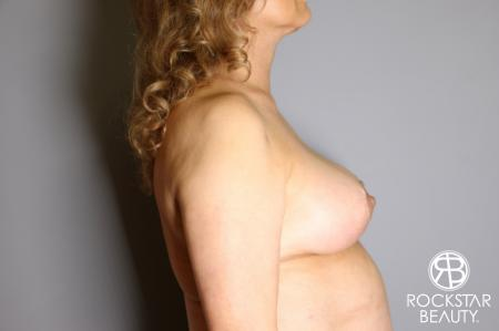Mastopexy: Patient 3 - After Image 5