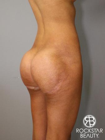 Butt Augmentation: Patient 1 - After Image 2