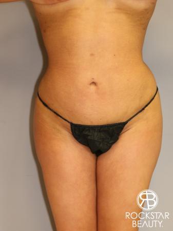 Brazilian Butt Lift: Patient 1 - After Image 2