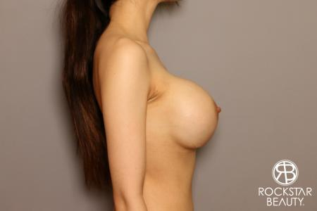 Breast Implant Exchange: Patient 8 - After Image 3