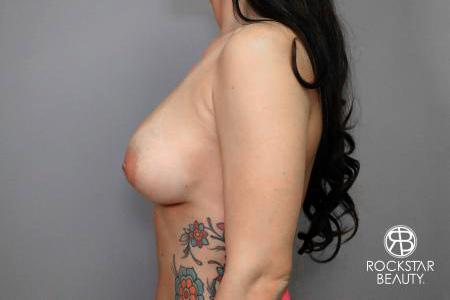 Breast Implant Exchange: Patient 4 - Before and After Image 5