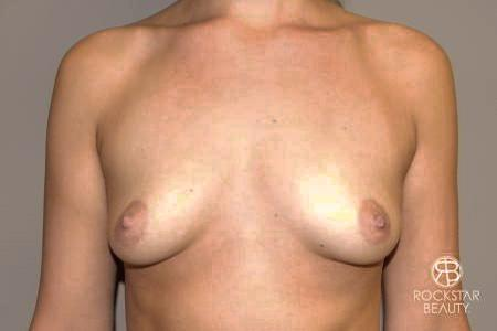 Breast Augmentation - Fat: Patient 1 - Before Image 1