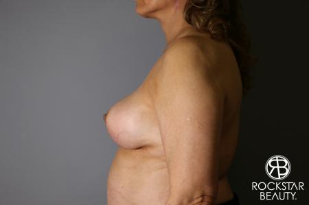 Mastopexy: Patient 3 - After Image 3
