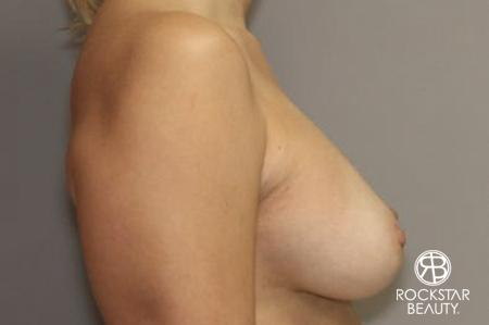 Breast Augmentation: Patient 7 - After Image 3