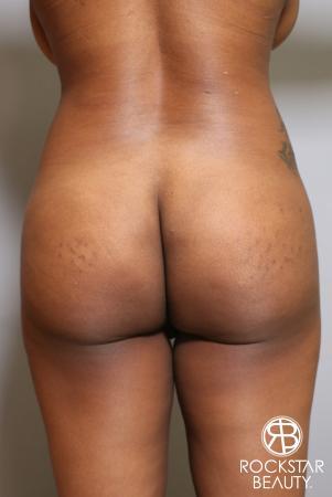 Brazilian Butt Lift: Patient 10 - Before Image