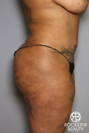 Brazilian Butt Lift: Patient 15 - Before and After Image 5