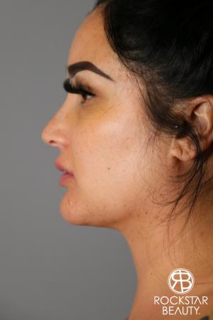 SmartLipo®-Face/Neck: Patient 2 - After Image 1
