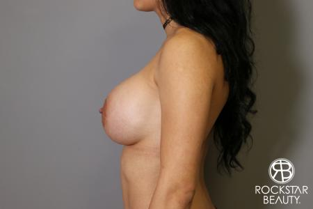 Breast Implant Exchange: Patient 5 - After Image 5
