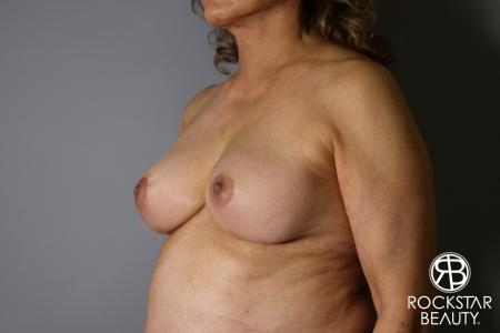 Mastopexy: Patient 3 - After Image 2