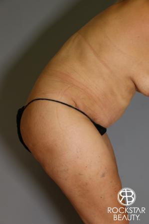 Tummy Tuck: Patient 13 - After Image 5