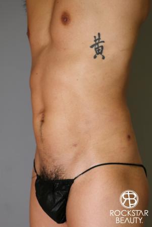 Liposuction: Patient 17 - After Image 4