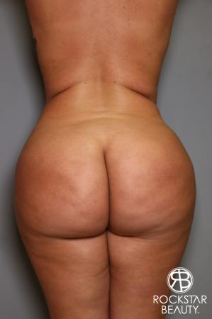 Brazilian Butt Lift: Patient 14 - Before Image 1