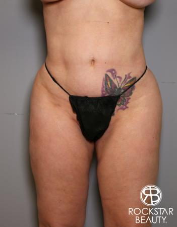 Liposuction: Patient 7 - After Image