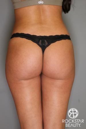 Brazilian Butt Lift: Patient 5 - After Image