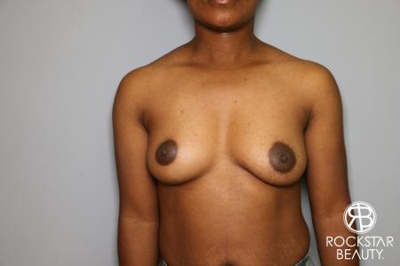 Breast Augmentation: Patient 10 - Before Image 1
