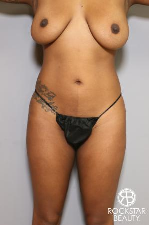 Liposuction: Patient 18 - Before Image 1