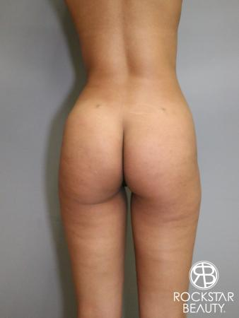 Liposuction: Patient 6 - After Image 1