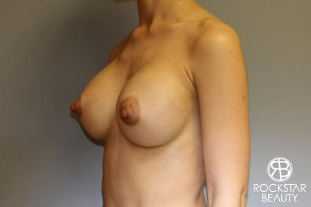 Breast Augmentation: Patient 17 - After Image 2