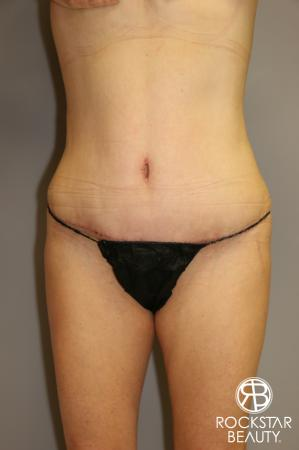 Tummy Tuck: Patient 1 - After Image