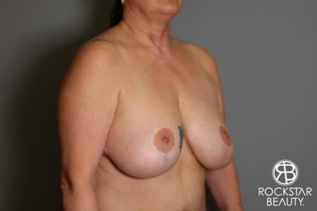 Mastopexy: Patient 2 - Before Image 2
