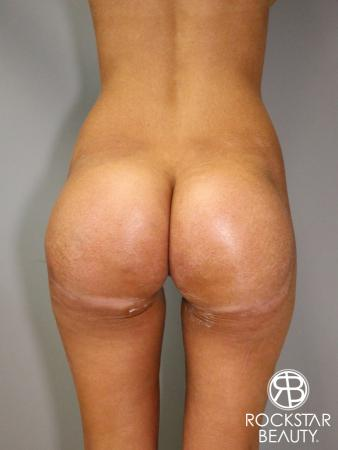 Butt Augmentation: Patient 1 - After Image