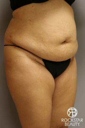 Tummy Tuck: Patient 2 - Before Image 2