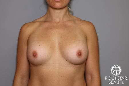 Breast Implant Exchange: Patient 9 - Before Image 1