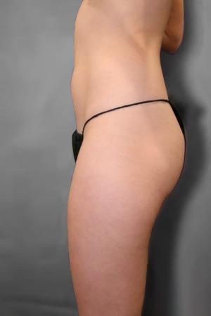 Liposuction: Patient 9 - Before and After Image 3