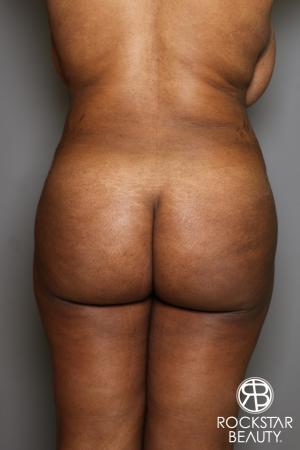 Brazilian Butt Lift: Patient 13 - After Image 1