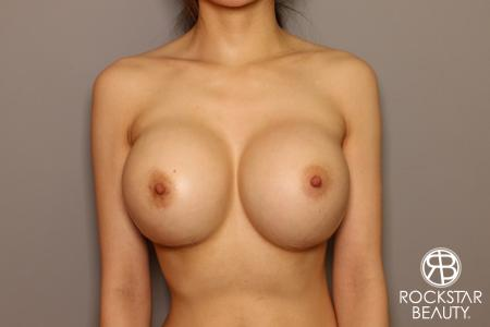 Breast Implant Exchange: Patient 8 - After Image 5