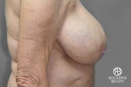 Breast Reduction: Patient 2 - Before and After Image 3
