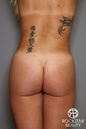 Brazilian Butt Lift: Patient 6 - After Image 1
