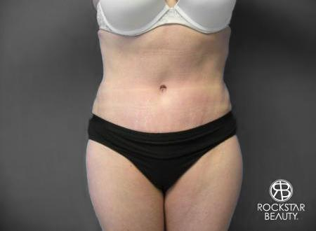 Tummy Tuck: Patient 6 - After Image
