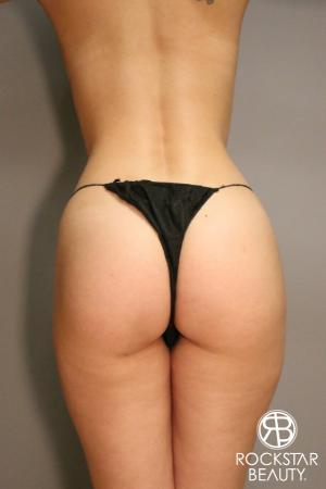 Brazilian Butt Lift: Patient 3 - After Image 1