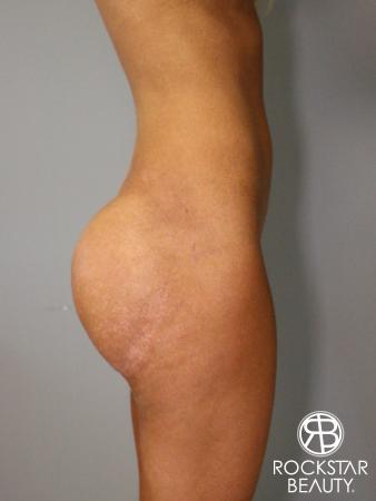Butt Augmentation: Patient 1 - After Image 3
