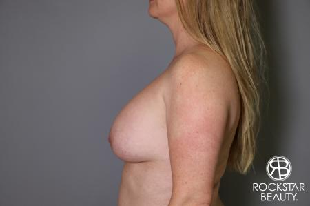 Combo Procedures - Breast: Patient 2 - Before and After Image 5