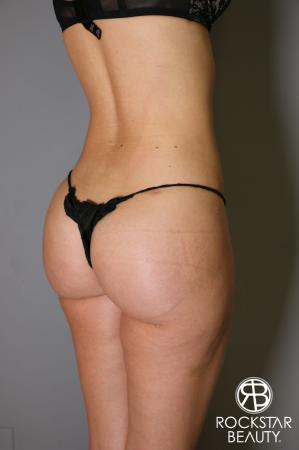 Brazilian Butt Lift: Patient 2 - After Image 4