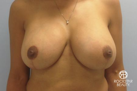 Combo Procedures - Breast: Patient 1 - After Image