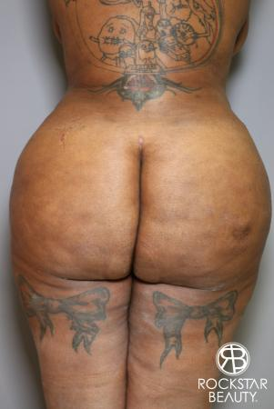 Brazilian Butt Lift: Patient 15 - After Image 1