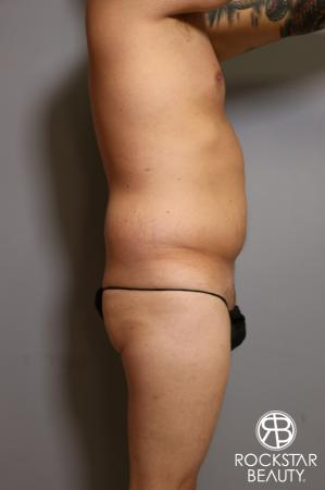 Tummy Tuck: Patient 5 - Before and After Image 4