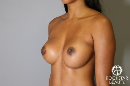 Breast Augmentation: Patient 14 - After Image 3